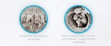 Фото 5. Частицы MicroRepair запечатывают открытые дентинные канальцы