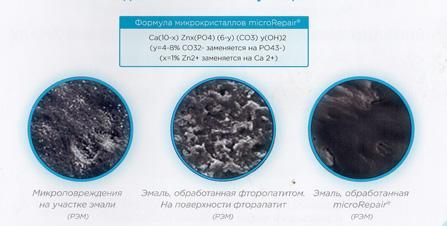 Фото 3. Микрокристаллы BioRepair сглаживают повреждения на эмали